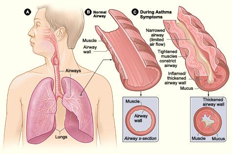 Asthma_attack-illustration_NIH